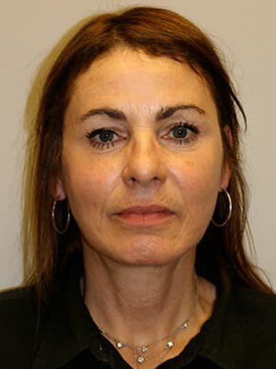 Facelift Gallery - Patient 12059314 - Image 2