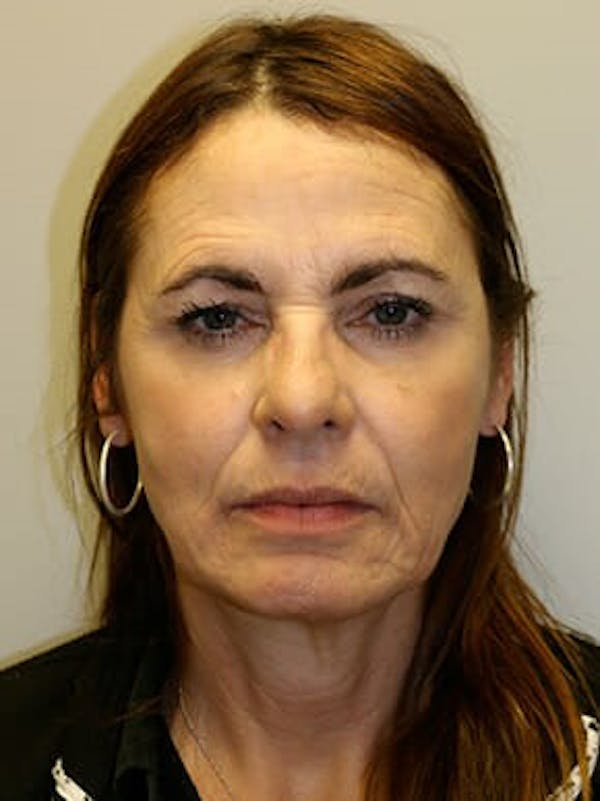Facelift Gallery - Patient 12059314 - Image 1