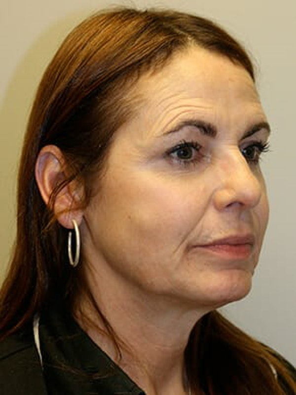 Facelift Gallery - Patient 12059314 - Image 3