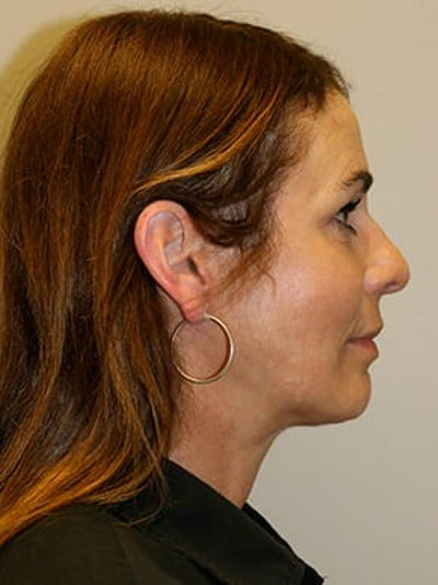 Facelift Gallery - Patient 12059314 - Image 6