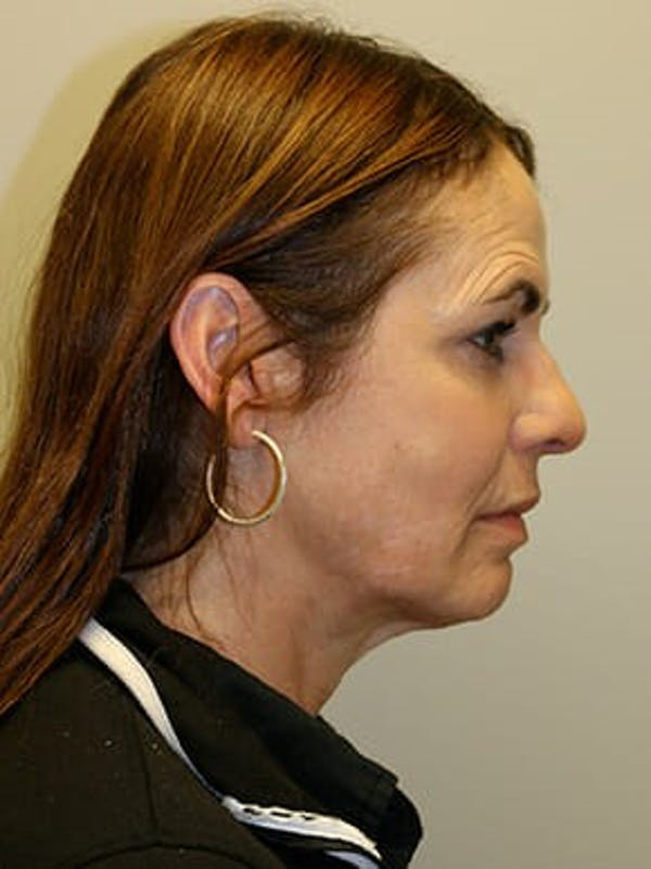Facelift Gallery - Patient 12059314 - Image 5