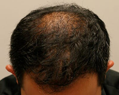 Hair Transplant Gallery - Patient 12059324 - Image 2