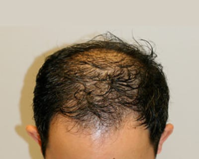 Hair Transplant Gallery - Patient 12059324 - Image 1