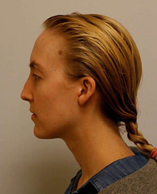Rhinoplasty Gallery - Patient 12059457 - Image 3