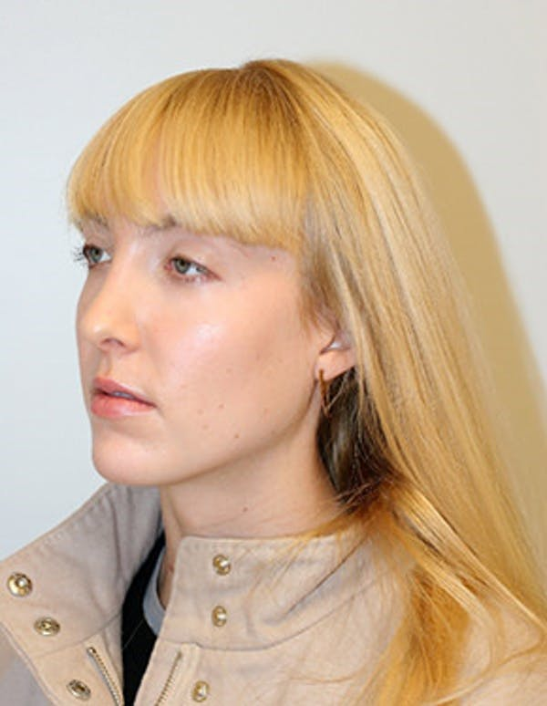 Rhinoplasty Gallery - Patient 12059457 - Image 6