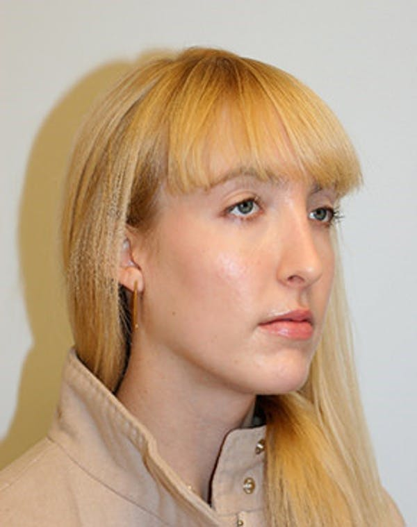 Rhinoplasty Gallery - Patient 12059457 - Image 2
