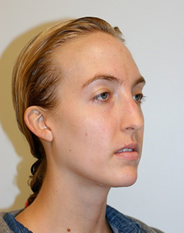 Rhinoplasty Gallery - Patient 12059457 - Image 1