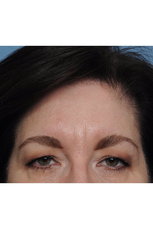 Eyelid Lift Gallery - Patient 8376631 - Image 3
