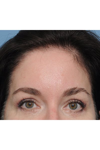 Eyelid Lift Gallery - Patient 8376631 - Image 4