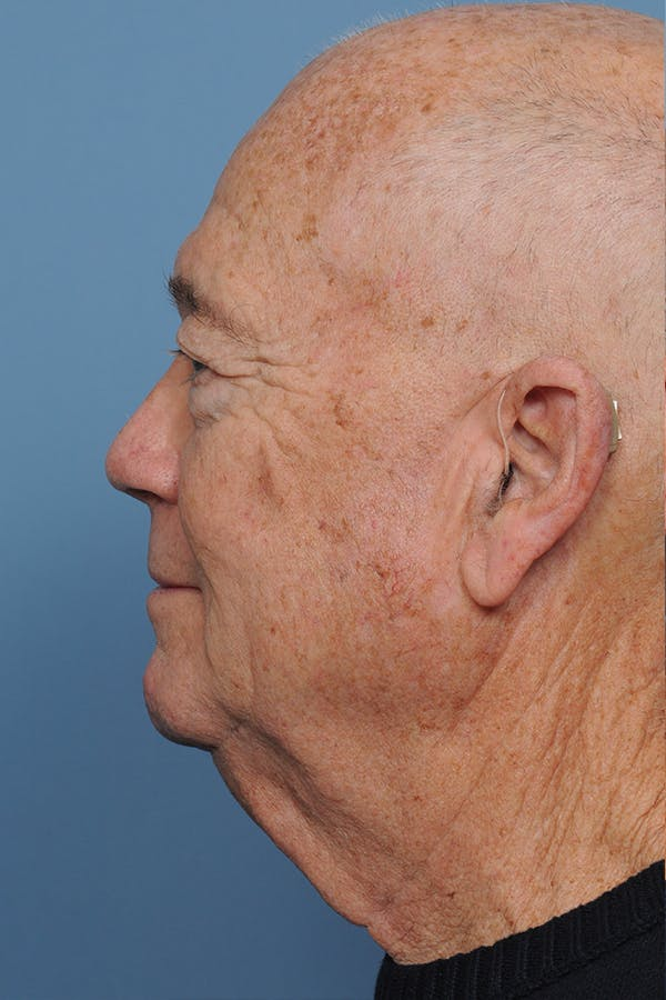 Brow Lift Gallery - Patient 8376515 - Image 3