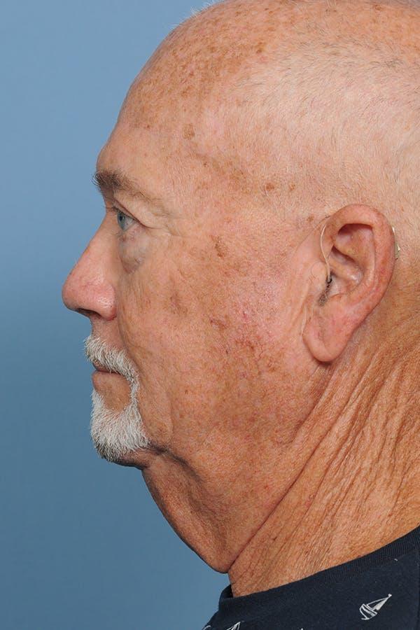 Brow Lift Gallery - Patient 8376515 - Image 4