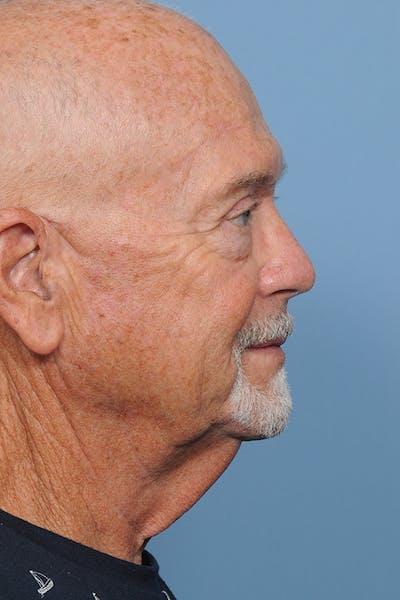 Brow Lift Gallery - Patient 8376515 - Image 8