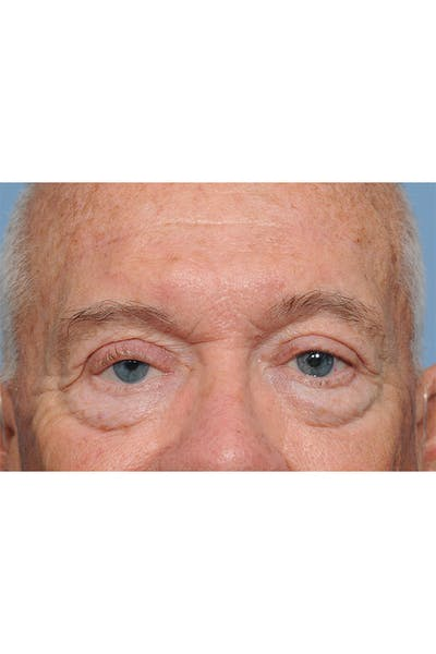 Eyelid Lift Gallery - Patient 8376646 - Image 2