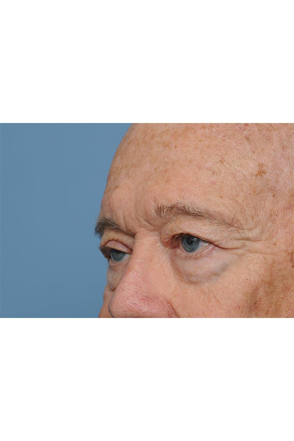 Eyelid Lift Gallery - Patient 8376646 - Image 5