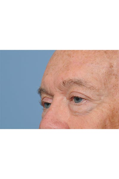 Eyelid Lift Gallery - Patient 8376646 - Image 6