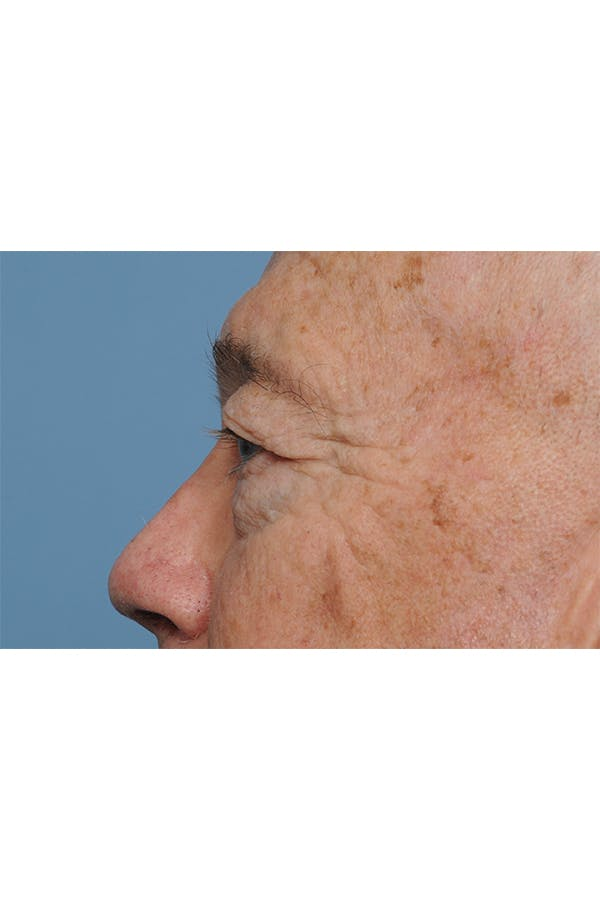 Eyelid Lift Gallery - Patient 8376646 - Image 3