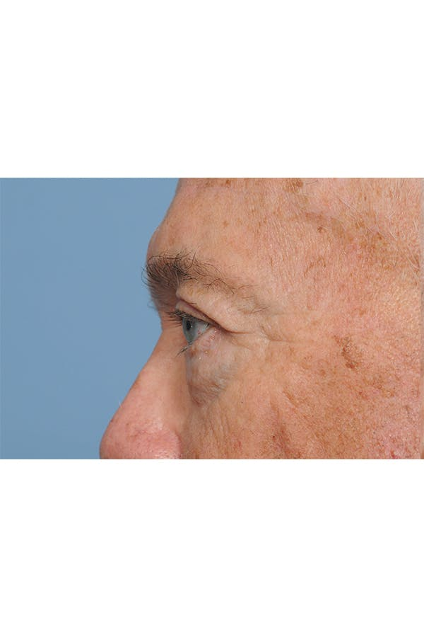 Eyelid Lift Gallery - Patient 8376646 - Image 4