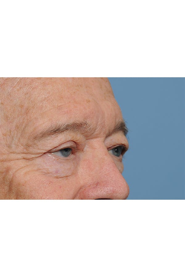 Eyelid Lift Gallery - Patient 8376646 - Image 9