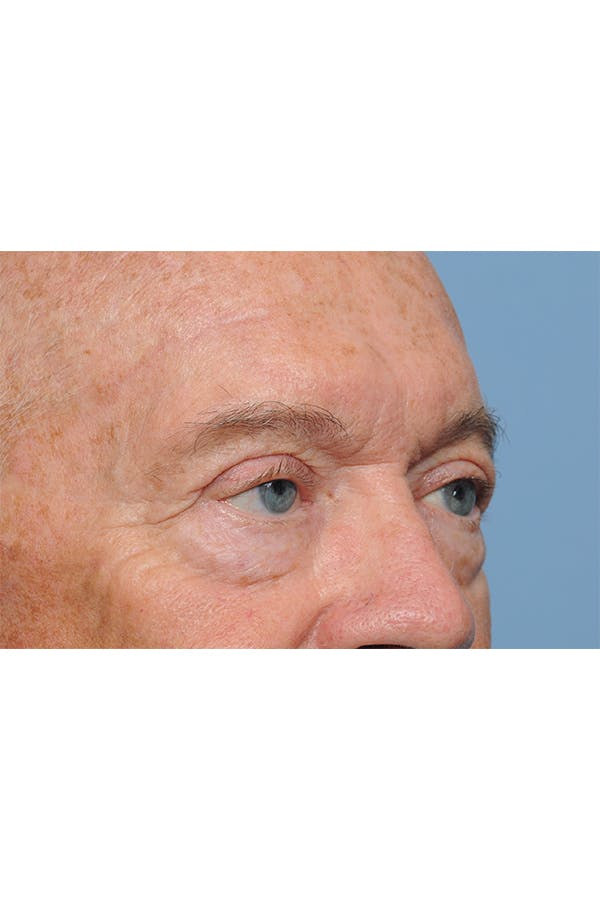 Eyelid Lift Gallery - Patient 8376646 - Image 10