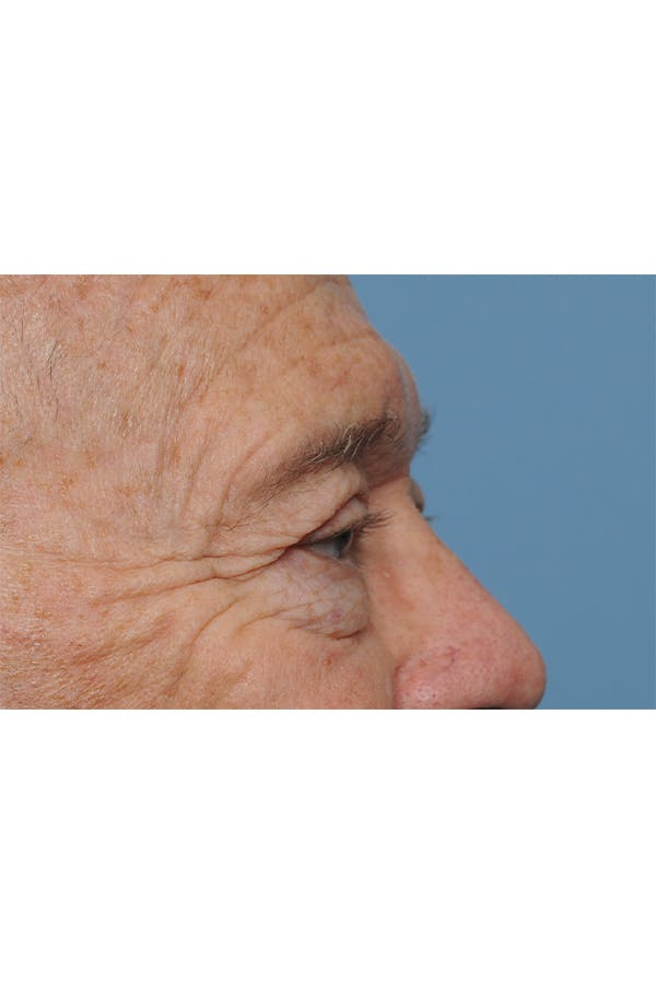 Eyelid Lift Gallery - Patient 8376646 - Image 7