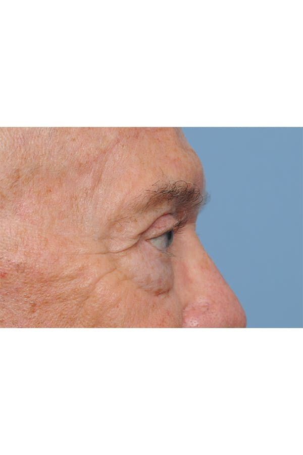 Eyelid Lift Gallery - Patient 8376646 - Image 8