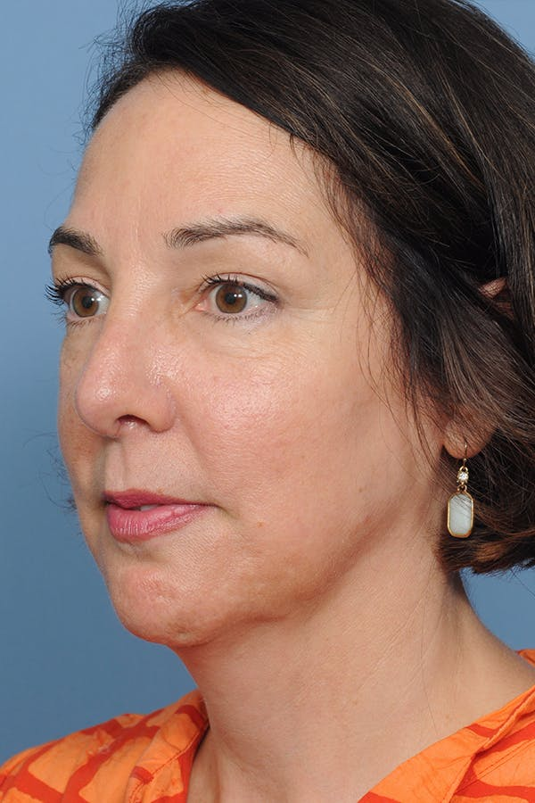 Revision Rhinoplasty Gallery - Patient 8376701 - Image 6