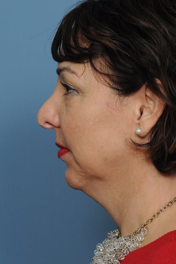 Revision Rhinoplasty Gallery - Patient 8376701 - Image 3