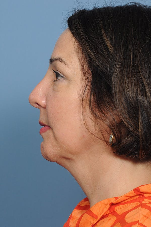 Revision Rhinoplasty Gallery - Patient 8376701 - Image 4