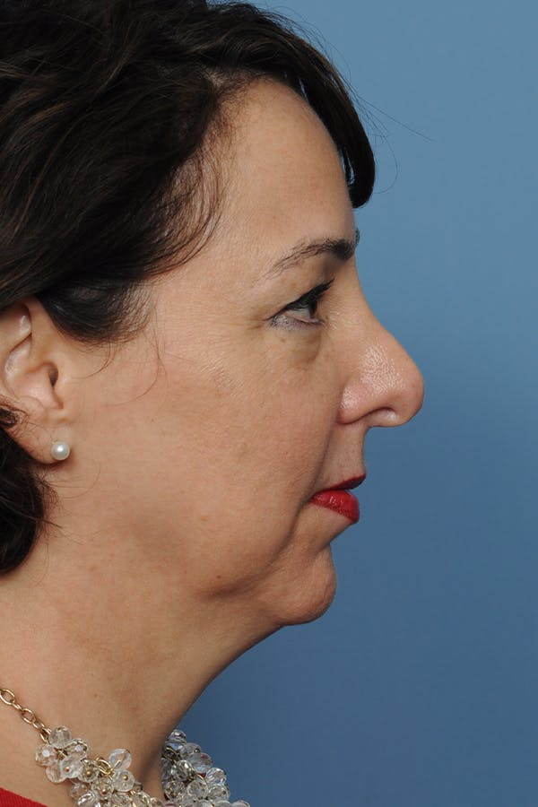 Revision Rhinoplasty Gallery - Patient 8376701 - Image 7