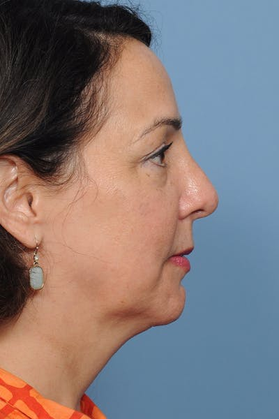 Revision Rhinoplasty Gallery - Patient 8376701 - Image 8