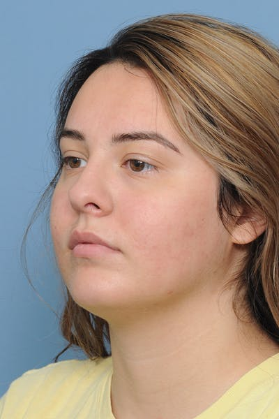 Rhinoplasty Gallery - Patient 8376727 - Image 6