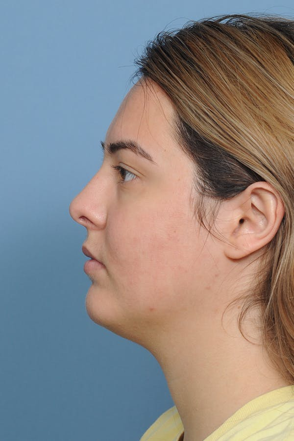 Rhinoplasty Gallery - Patient 8376727 - Image 4