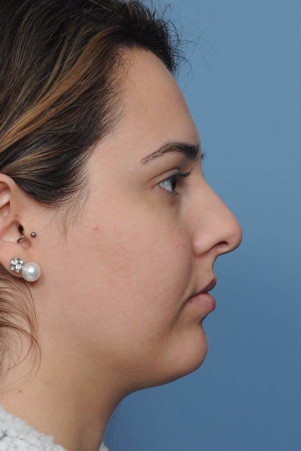 Rhinoplasty Gallery - Patient 8376727 - Image 7