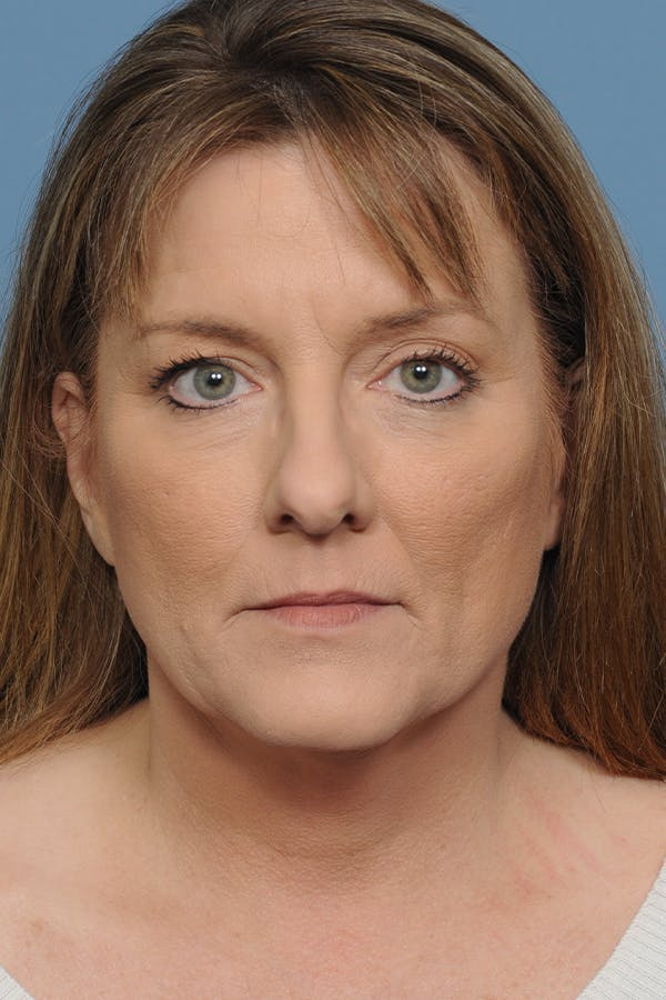 Rhinoplasty Gallery - Patient 8376738 - Image 1