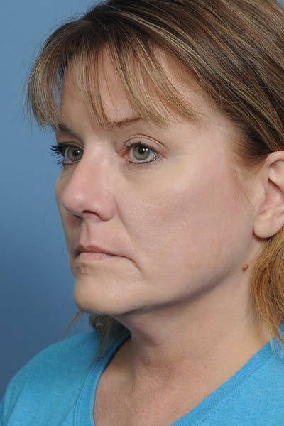 Rhinoplasty Gallery - Patient 8376738 - Image 6