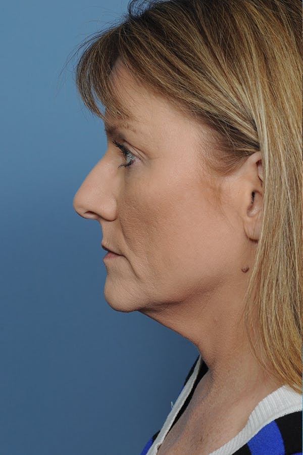 Rhinoplasty Gallery - Patient 8376738 - Image 3