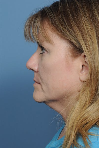 Rhinoplasty Gallery - Patient 8376738 - Image 4