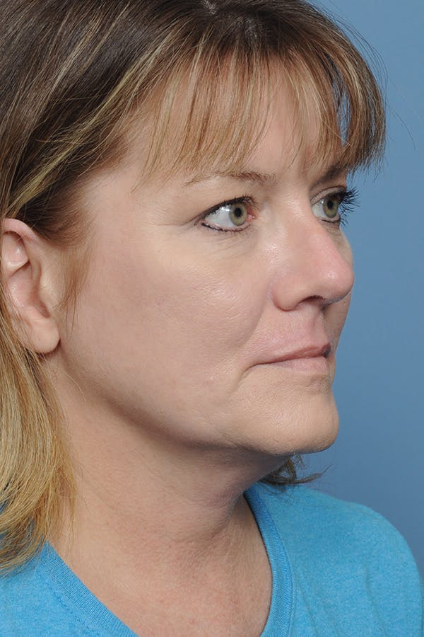 Rhinoplasty Gallery - Patient 8376738 - Image 10