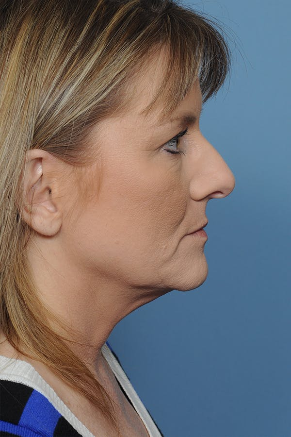Rhinoplasty Gallery - Patient 8376738 - Image 7