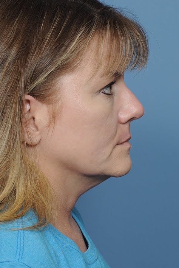Rhinoplasty Gallery - Patient 8376738 - Image 8