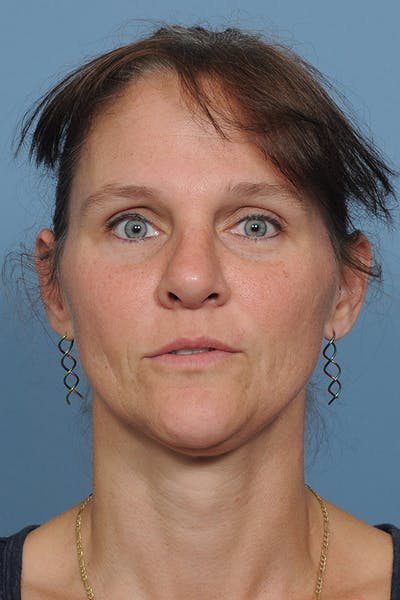 Rhinoplasty Gallery - Patient 8562223 - Image 2