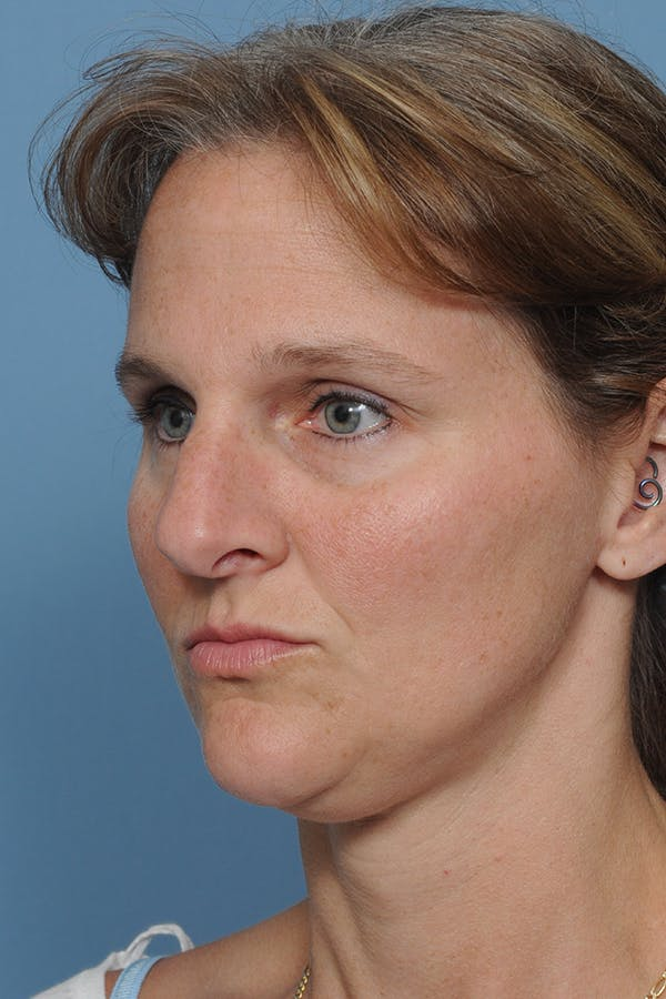 Rhinoplasty Gallery - Patient 8562223 - Image 5