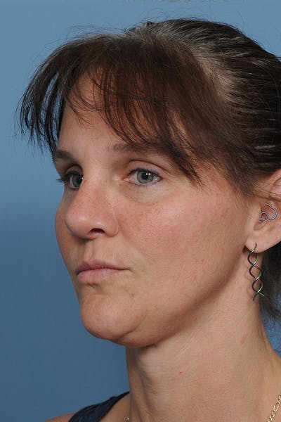 Rhinoplasty Gallery - Patient 8562223 - Image 6