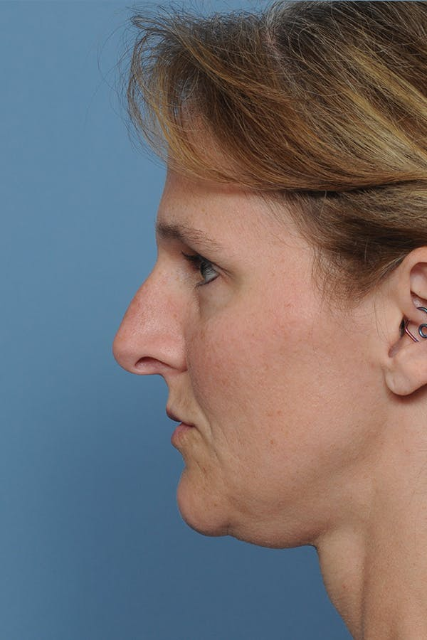 Rhinoplasty Gallery - Patient 8562223 - Image 3