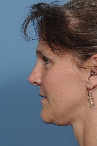 Rhinoplasty Gallery - Patient 8562223 - Image 4