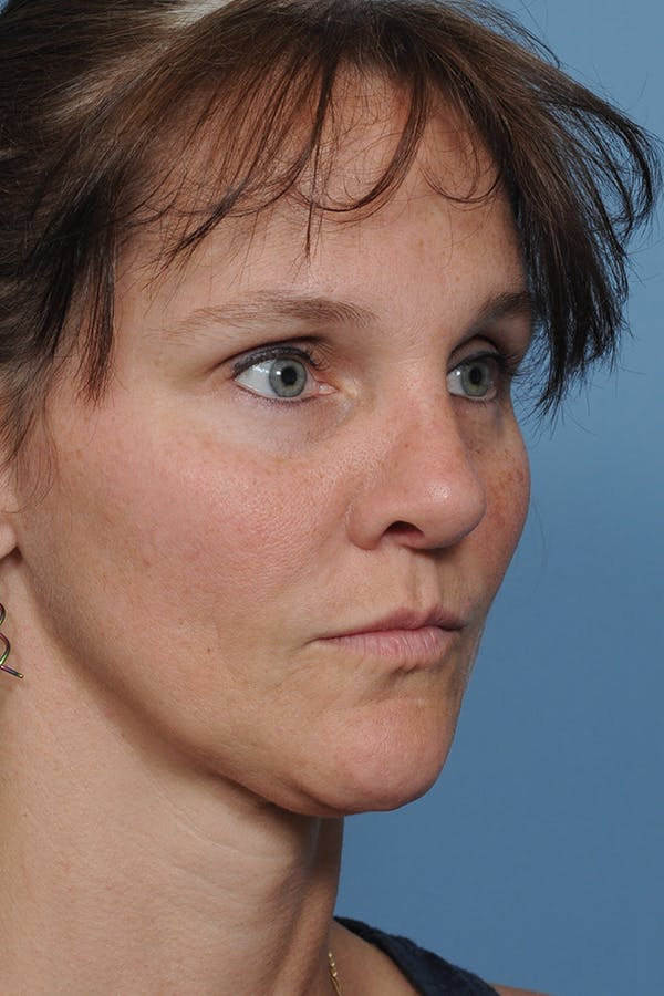 Rhinoplasty Gallery - Patient 8562223 - Image 10