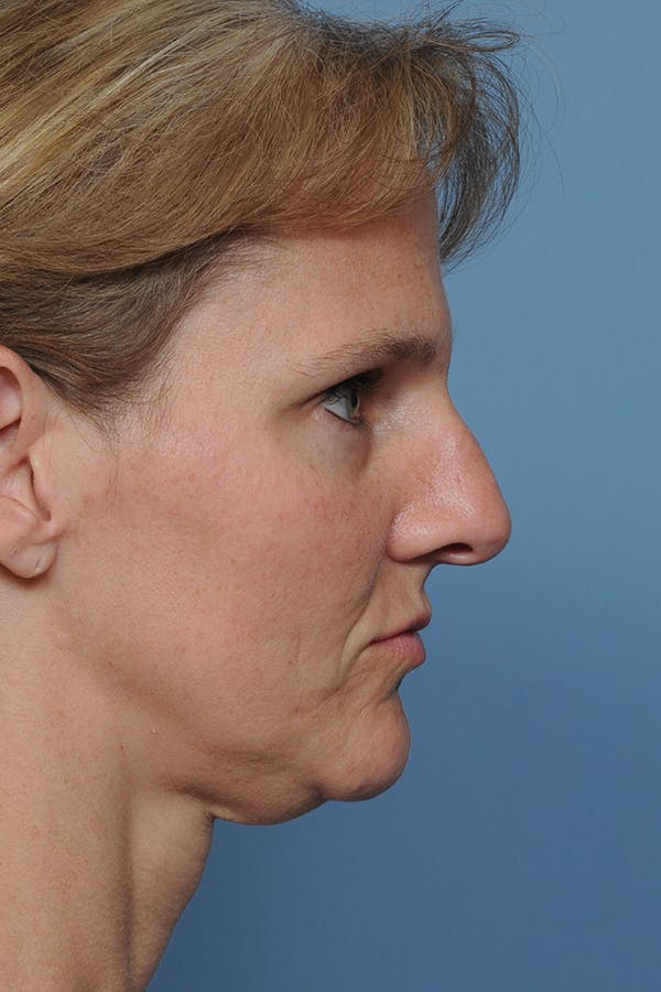 Rhinoplasty Gallery - Patient 8562223 - Image 7