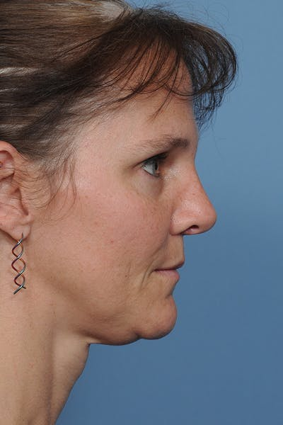 Rhinoplasty Gallery - Patient 8562223 - Image 8