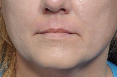 Laser Resurfacing Gallery - Patient 8615368 - Image 2