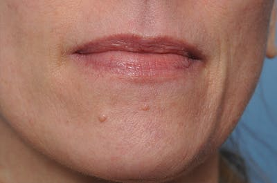 Blemish & Mole Removal Gallery - Patient 8647154 - Image 1